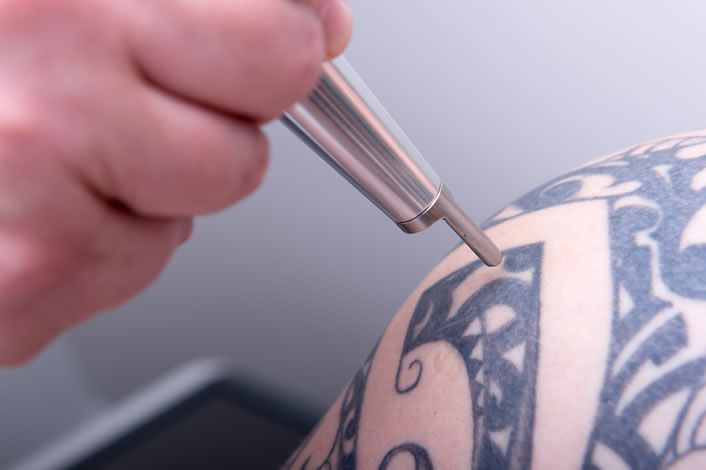 New Look Laser Tattoo Removal Houston | Voted Best by