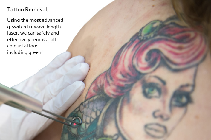 Laser Colour Tattoo Removal