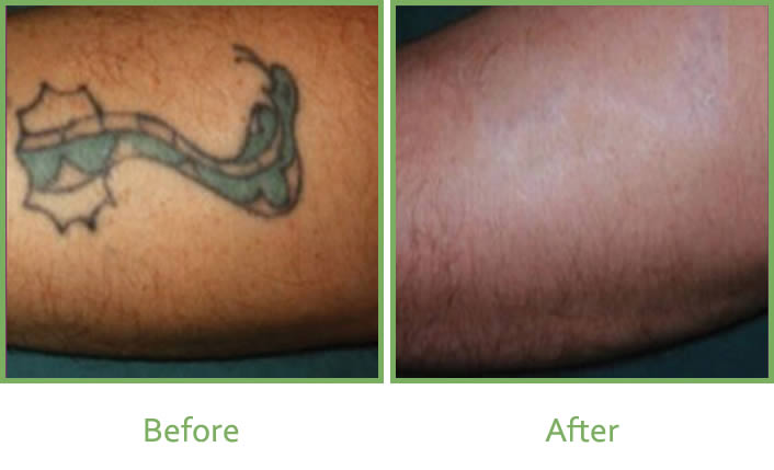 Laser tattoo removal services in south wales vale laser for Tattoo removal service