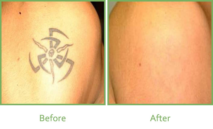 Laser Tattoo Removal Services In South Wales | Vale Laser ...