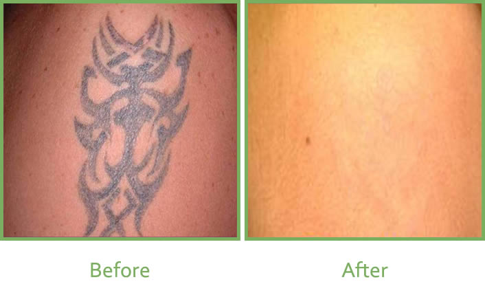 Laser Tattoo Removal Services In South Wales Vale Laser Clinic